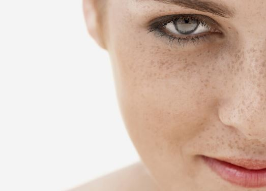 How To Remove Freckles Fast And Naturally