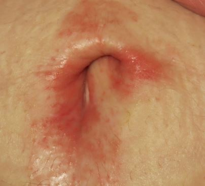 rash below belly button
