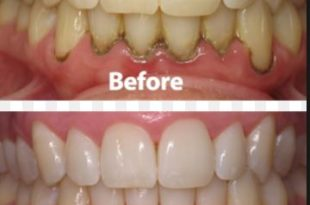 Before and after apple cider vinegar teeth whitening