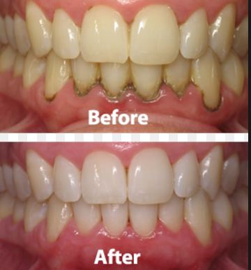 recipe: apple cider vinegar and baking soda for teeth [18]