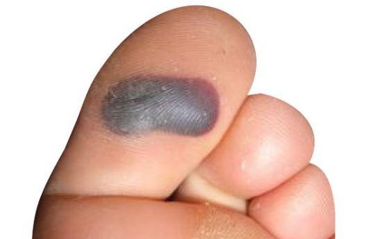 blood blister on toe toenail causes treat big bottom