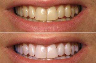 Turmeric powder for whiter teeth