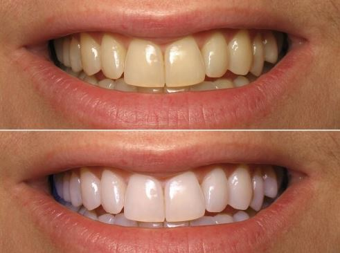 Turmeric powder for whiter teeth